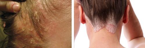 Est sèche la peau leczéma