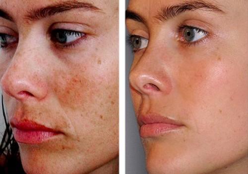Les raisons par la pigmentation de la peau